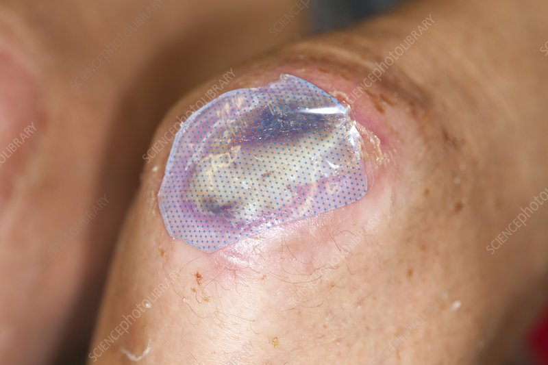 Carpet Burn On Knee Infected Review Home Co