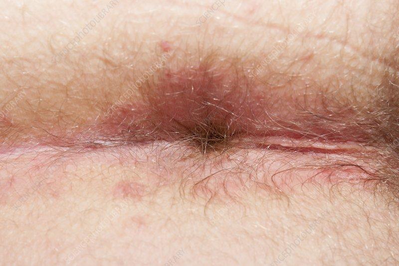 red rash around anus