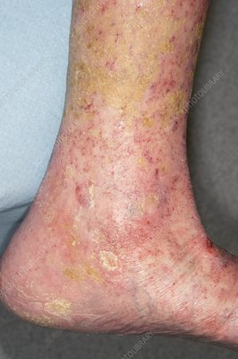 Healed varicose ulcers
