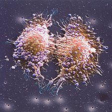 Cancer cell division, SEM