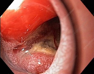 Pancreatic cancer, endoscope view