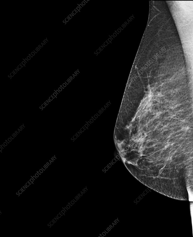 Breast Mammography.