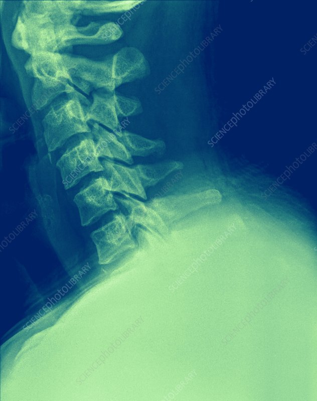 X-ray of a human Cervical spine