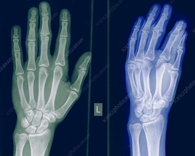 X-ray of a healthy hand