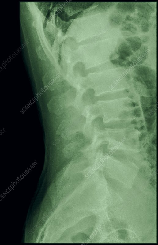 Dens fracture. Cervical spine x-ray