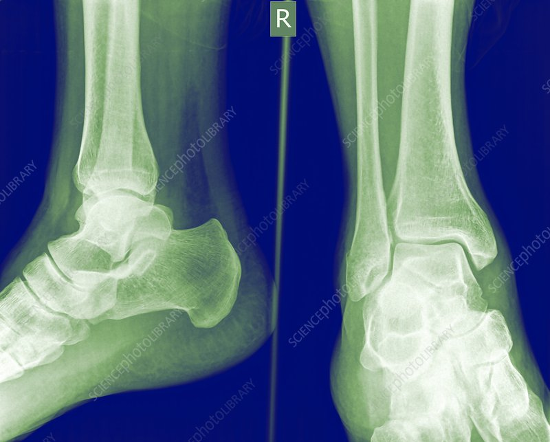 Ankle, X-ray