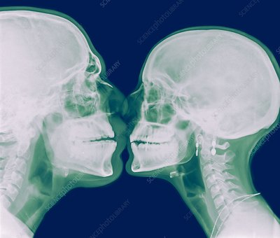 X-ray kissing