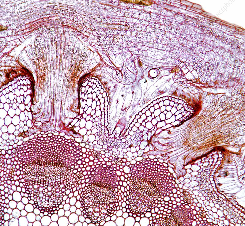 Parasitic plant stem, light micrograph