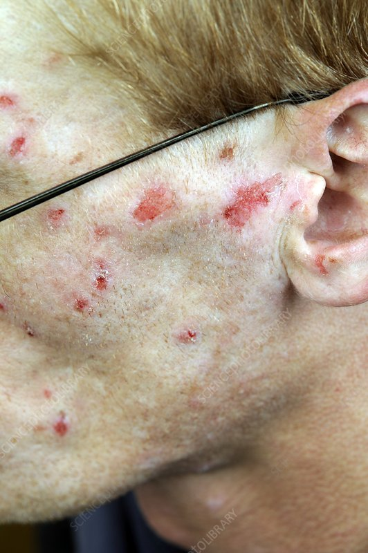 Infected self-inflicted skin lesions