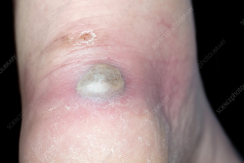 Infected blister