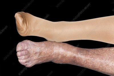 eczema on legs black people - photo #10