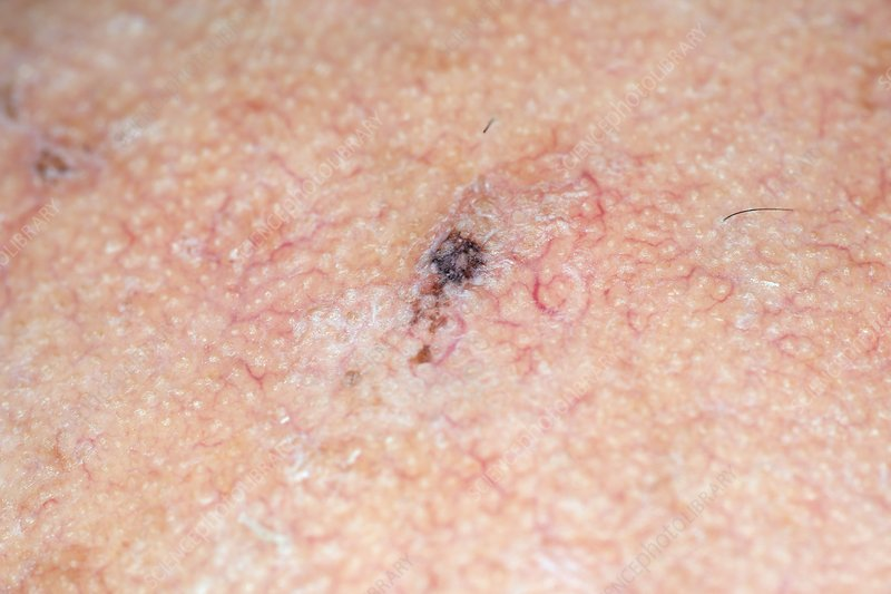Seborrhoeic wart on the skin