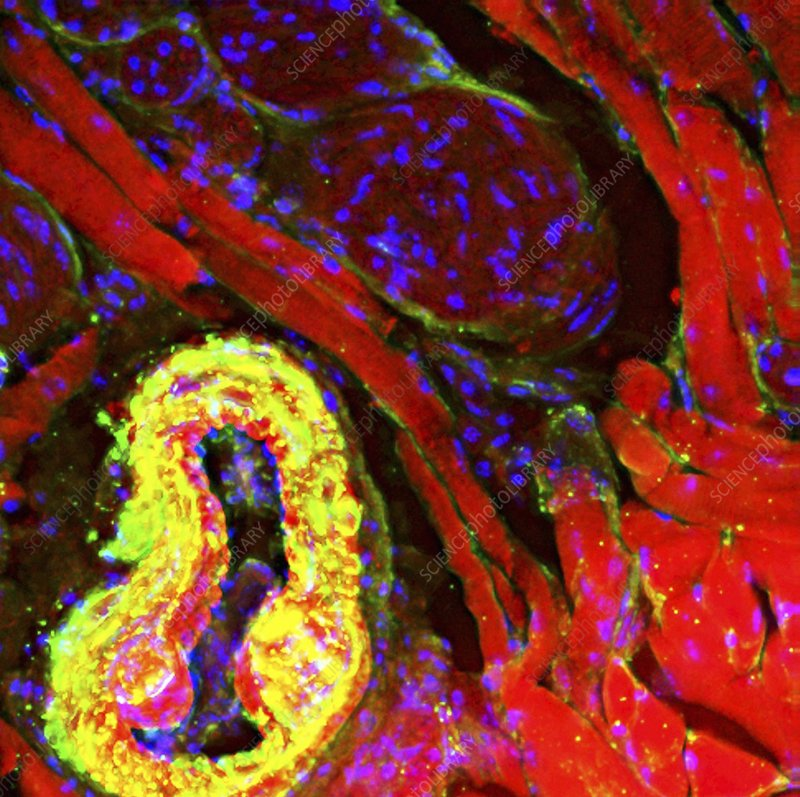 Tongue tissue, fluorescence micrograph