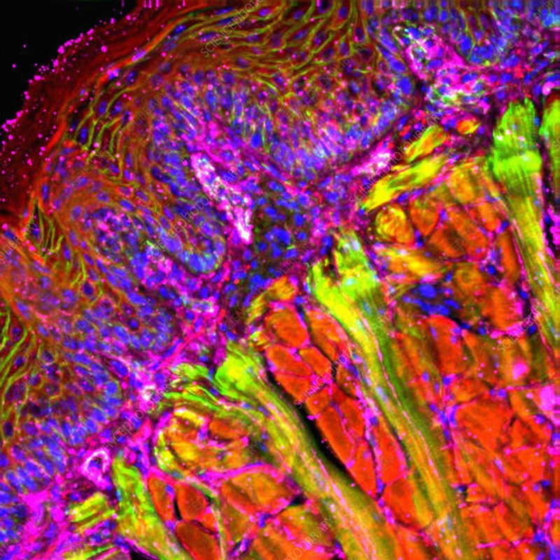 Tongue tissue, fluorescence micrograph
