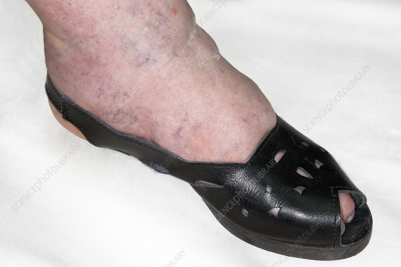Ankle oedema