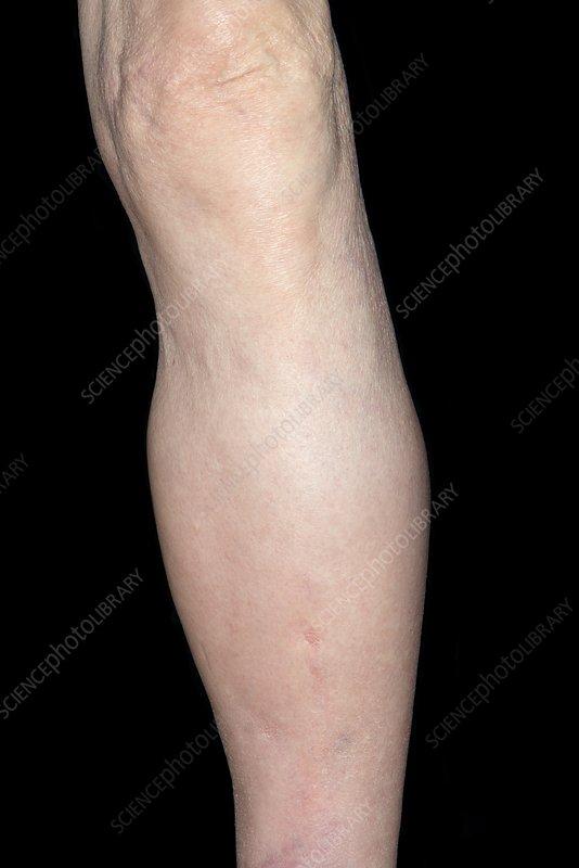 Swollen lower leg