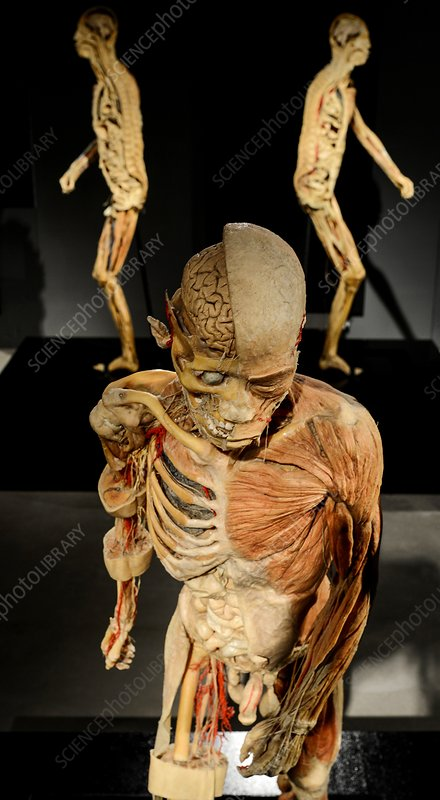 Human anatomy exhibition