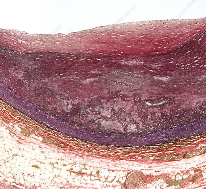 Atherosclerosis, light micrograph