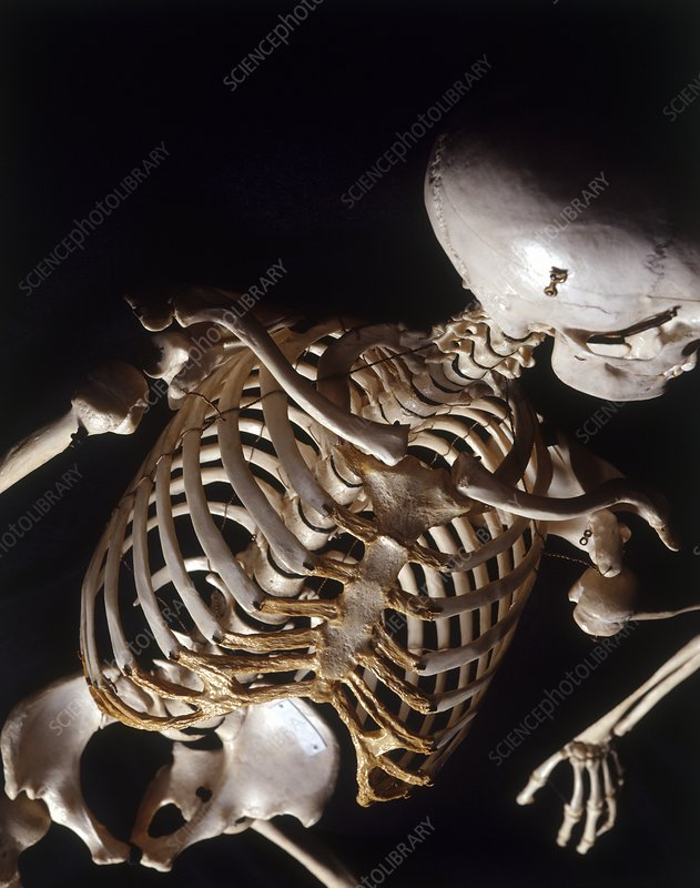 Human skeleton, rib cage, high angle view