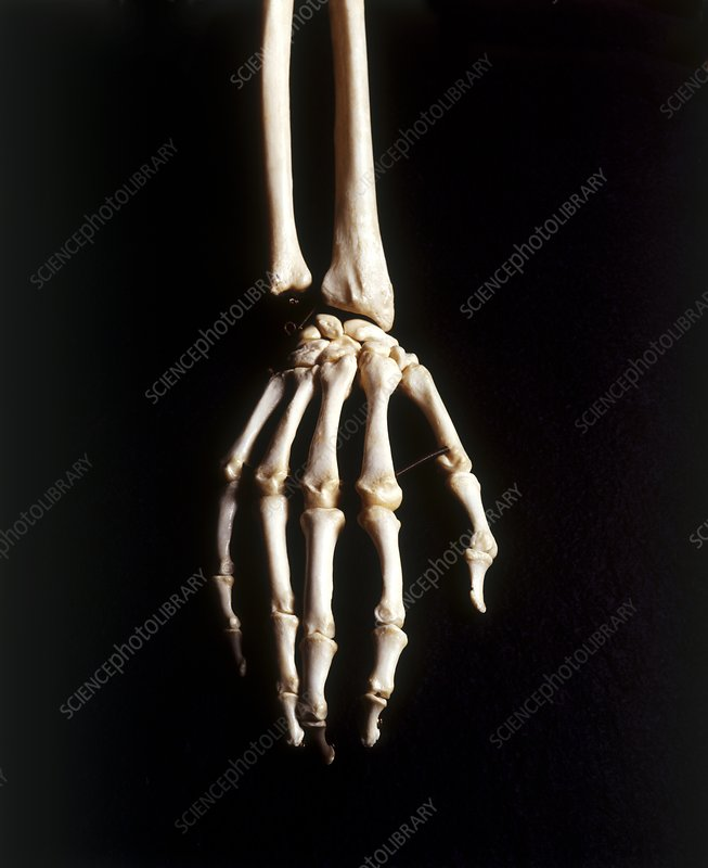 Human Skeleton Hand And Wrist Bones Stock Image C0198919