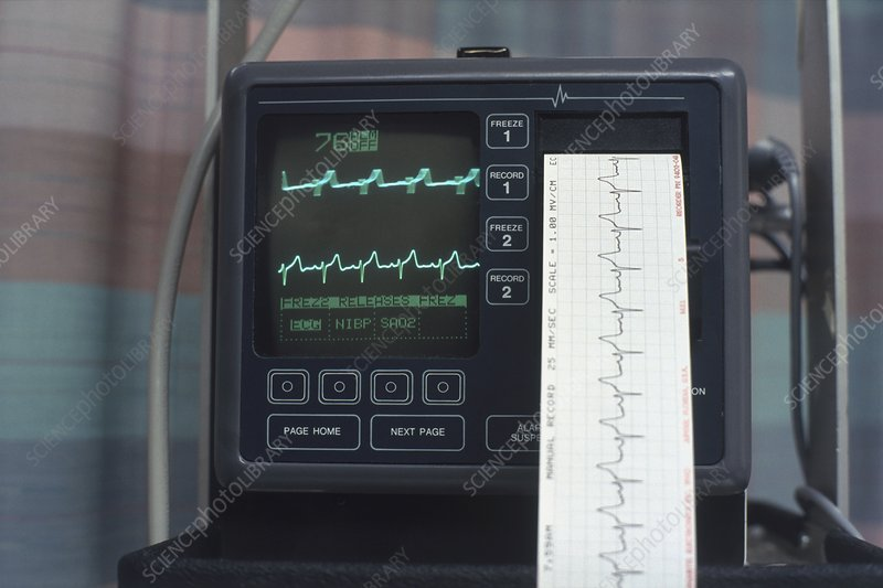 ECG monitor with printout coming out