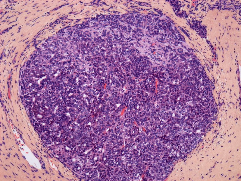Liver cancer, light micrograph