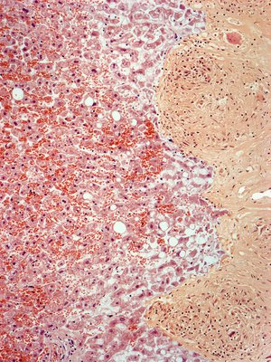 Liver sarcoidosis, light micrograph