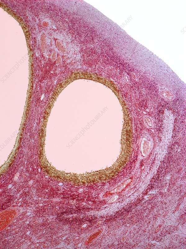 Ovarian cysts, light micrograph