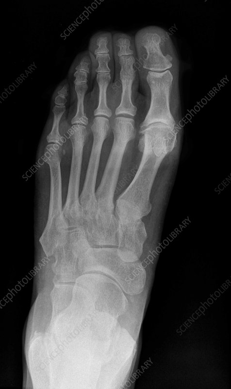 Arthritis of the foot, X-ray