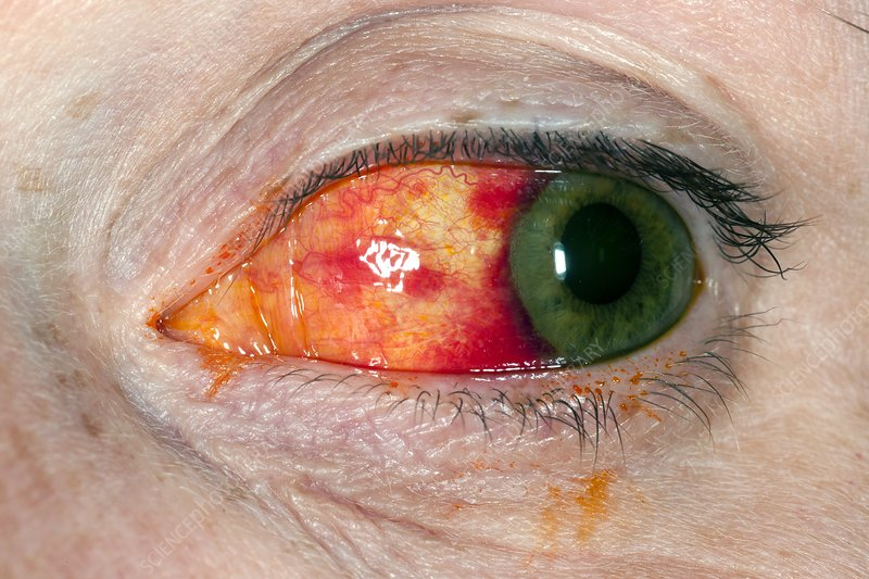 how to tell if you scratched your eye