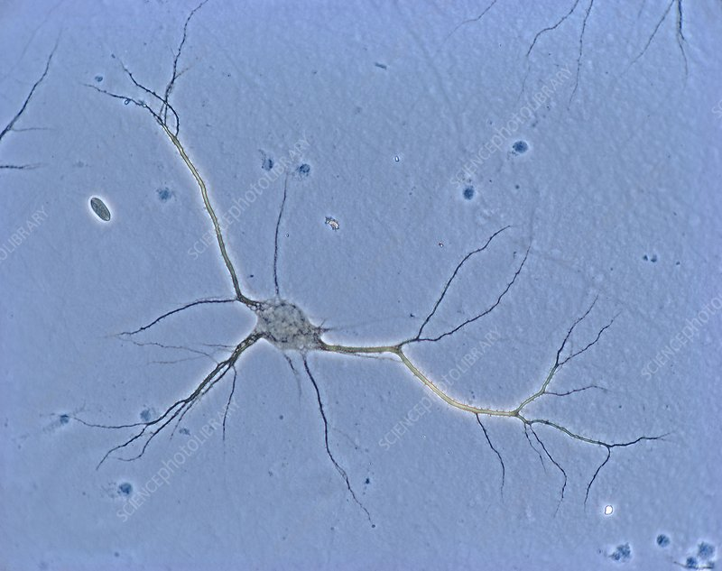 Nerve cell, light micrograph