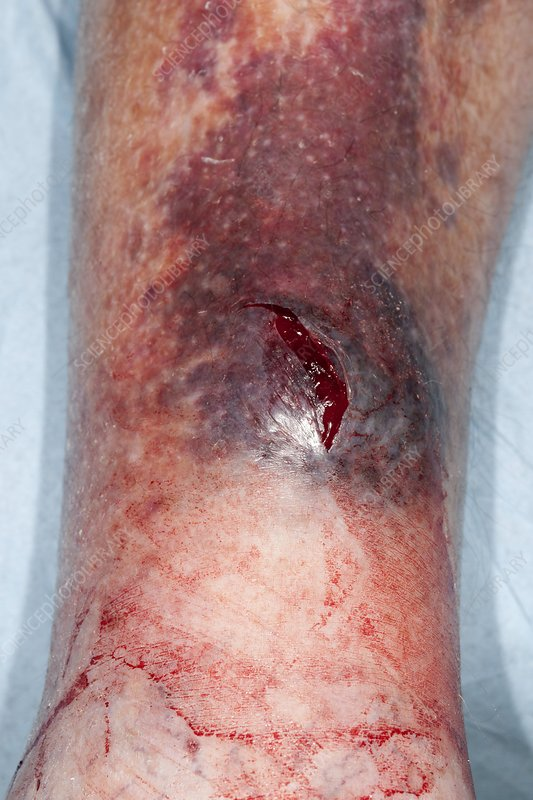 Laceration on leg