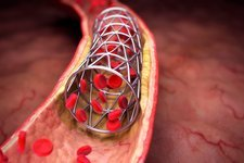 Arterial Stent, artwork