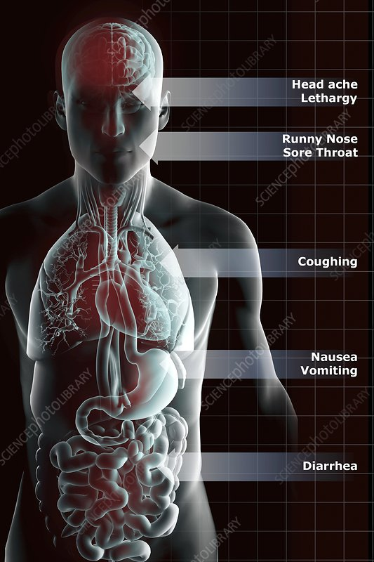 H1N1 Swine Influenza Virus Symptoms