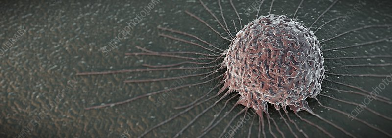 Breast Cancer Cell, artwork