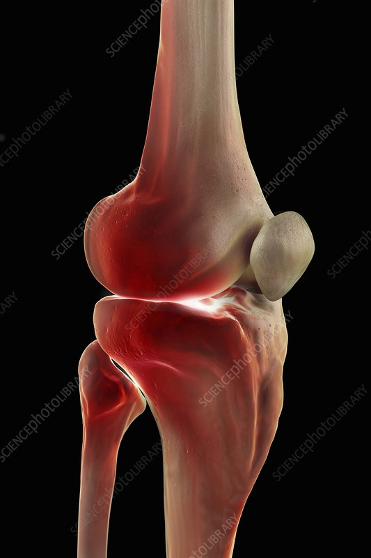 Human knee bones - photo#22