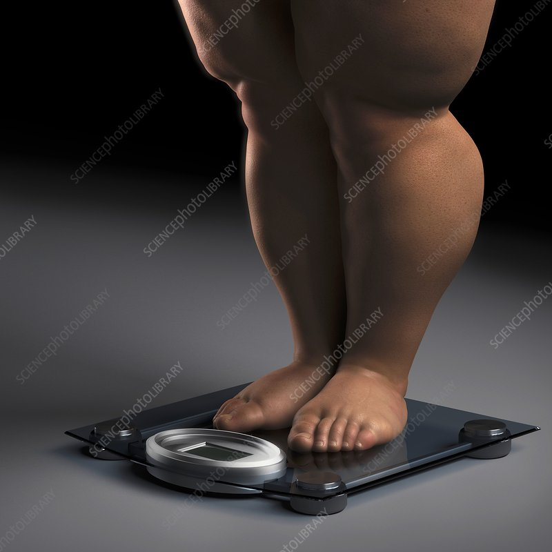 Obesity, artwork