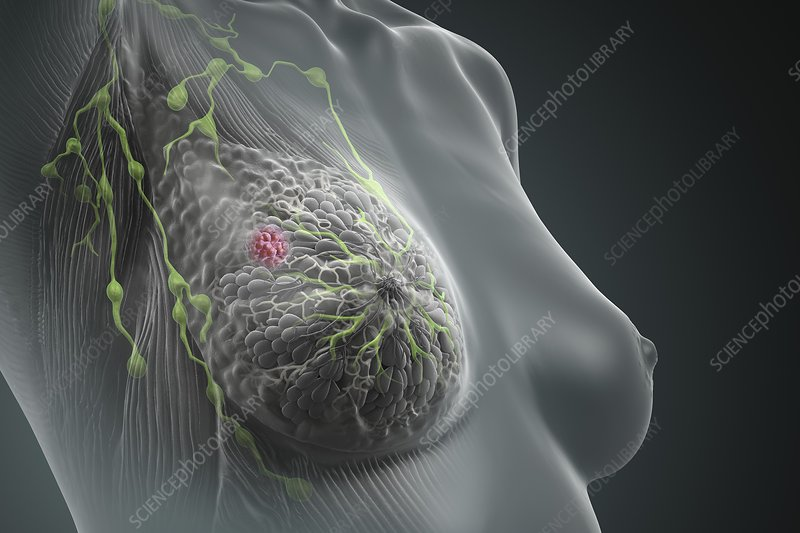 Breast Cancer, artwork