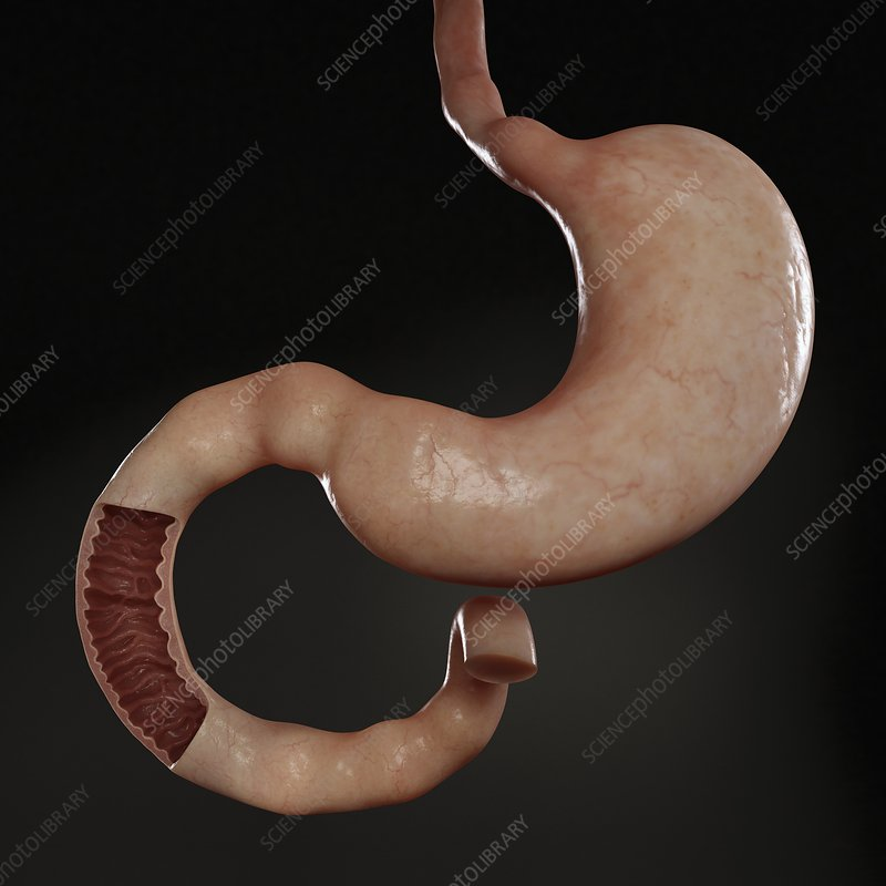 Stomach and Duodenum, artwork