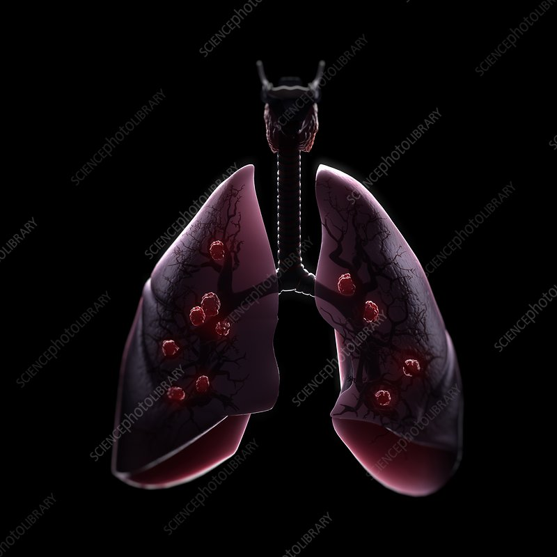 Multiple Lung Tumours, artwork