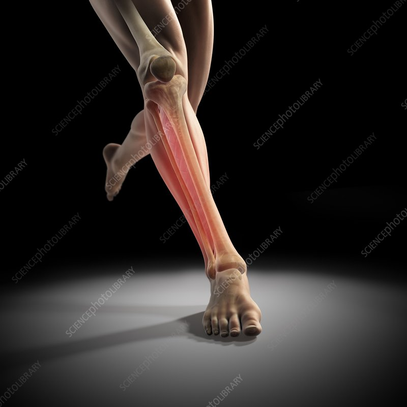 Medial Tibial Stress Syndrome, artwork