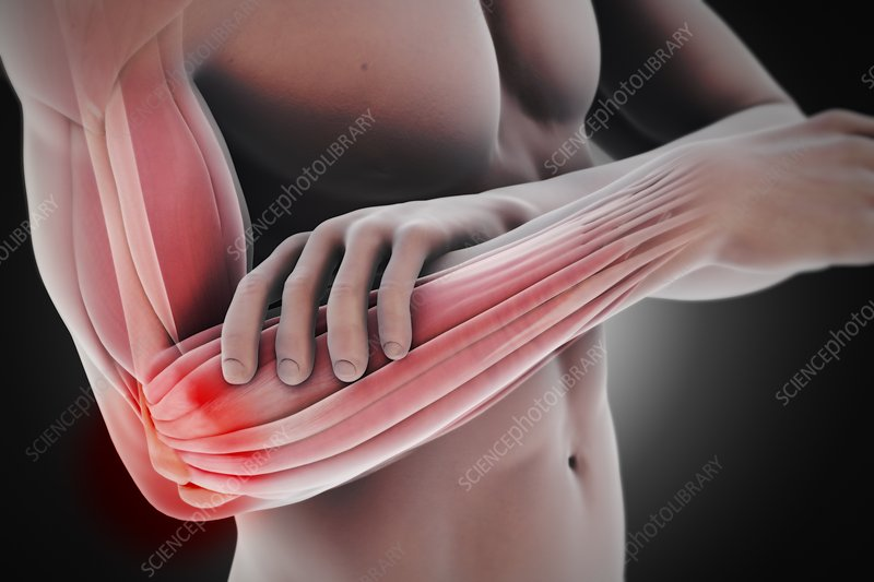 Tennis Elbow, artwork