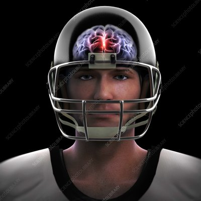 Brain Injury, artwork