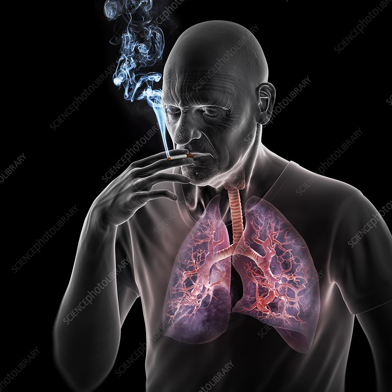 Dangers of Smoking, artwork