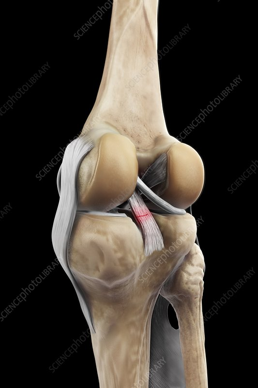 Posterior Cruciate Ligament Injury