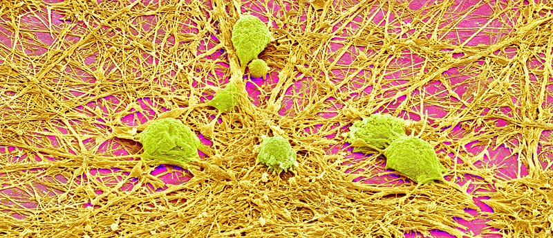 Nervous system cells, SEM