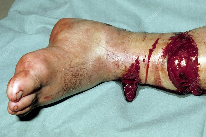 compound fracture of the ankle - stock image c020/7546 - science, Human Body