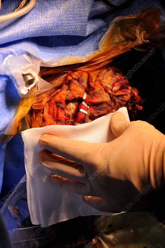 Parkinson's disease brain surgery