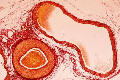Artery and vein, light micrograph