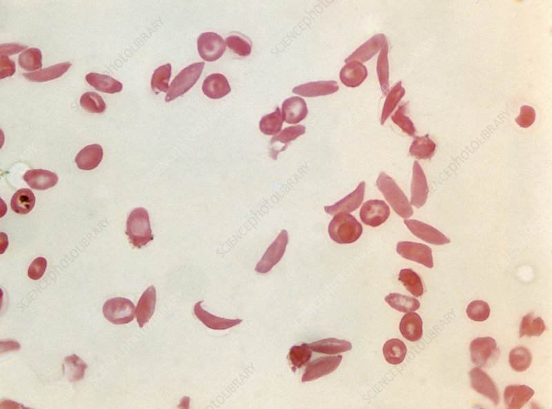 Sickle cell anaemia, light micrograph